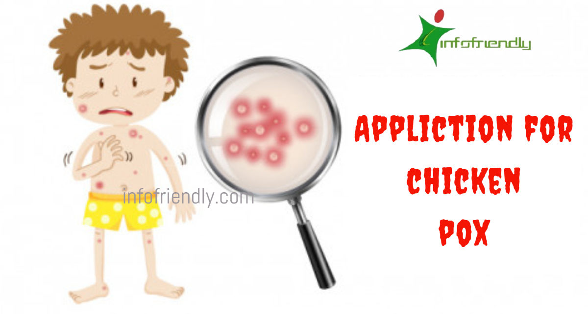 Write an application to your principal for Chicken pox leaves